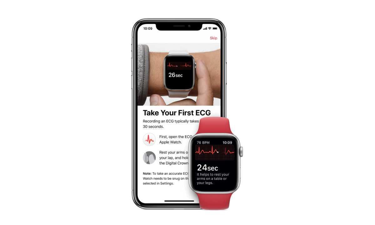 81a16e715 وفرت شركة آبل رسميا ميزة إمكانية إجراء مخطط كهربائي للقلب ECG أو رسم القلب  لمستخدمي ساعة اليد الذكية الخاصة بها ابل ووتش سيرس 4، وذلك كجزء من التحديث  ...