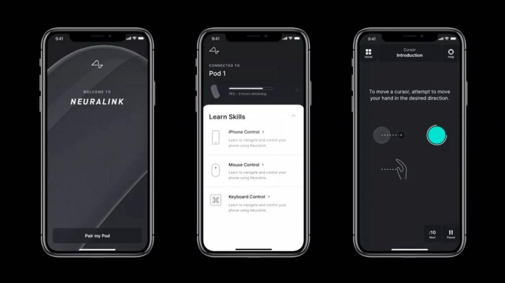 تطبيق Neuralink للتحكم في هواتف ايفون