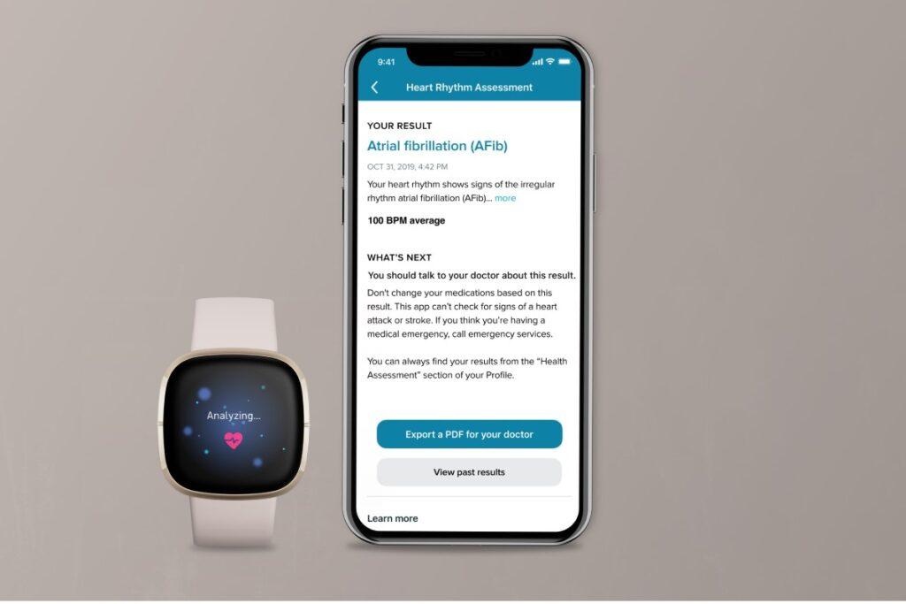 توفر ساعة فيتبت سينس Fitbit Sense الذكية الجديدة للمستخدم إمكانية إجراء مخطط كهربائي للقلب ECG